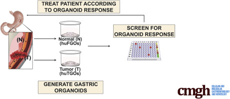 An Organoid-Based Preclinical Model of Human Gastric Cancer