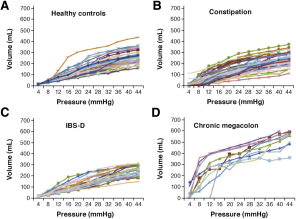 Measurement of Gastrointestinal and Colonic Motor Functions in