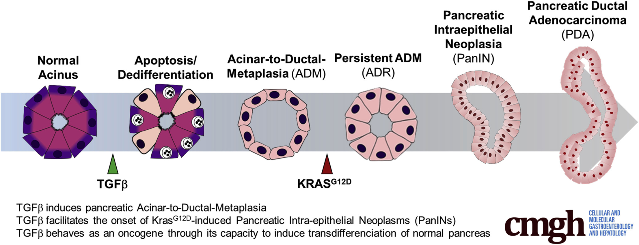 Acinar To Ductal Metaplasia Induced By Transforming Growth