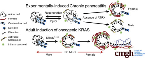 The Loss of ATRX Increases Susceptibility to Pancreatic Injury and