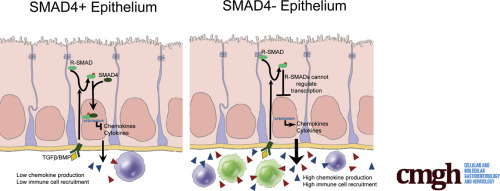 Epithelial Smad4 Deletion Up-Regulates Inflammation and